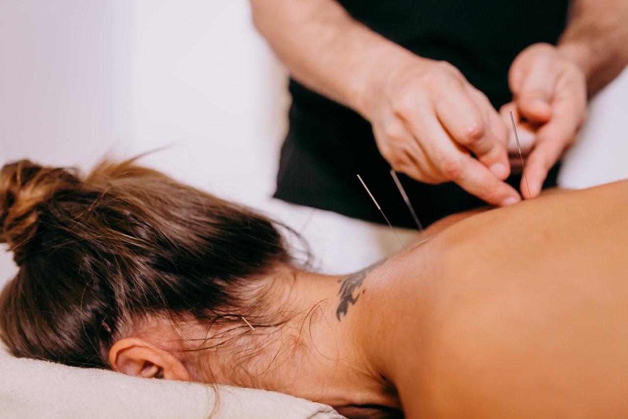 Akupunktur: Sinnvoll oder nicht?